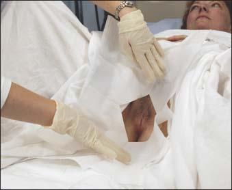 Indwelling Urinary Catheter Insertion | Nurse Key