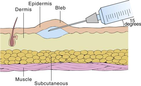 11. Parenteral Administration: Intradermal, Subcutaneous, and ...