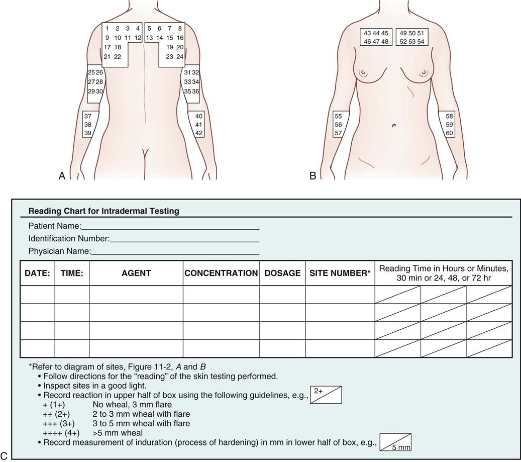 11 parenteral administration intradermal subcutaneous and figure 11 2 intradermal sites a posterior view b anterior view c reading a chart for intradermal testing pooptronica Choice Image