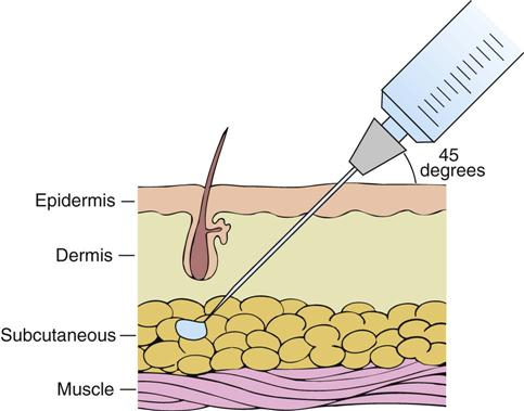 size needle inject steroids