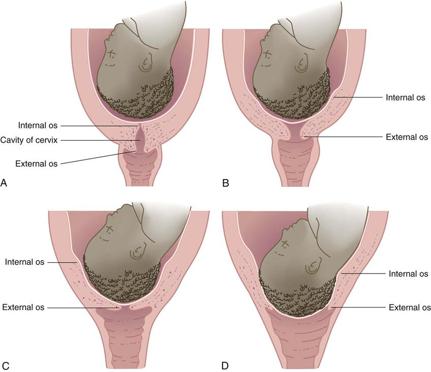 6 nursing care of mother and infant during labor and birth nurse key image figure 6 2 cervical effacement and dilation a no effacement no dilation b early effacement and dilation c complete effacement some dilation ccuart Gallery