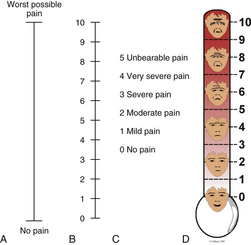 Pain and pain management nurse key for Vas scale pain