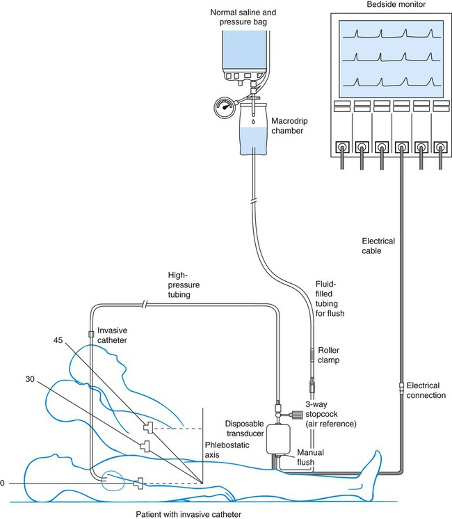 Cardiovascular Monitoring System : Cardiovascular diagnostic procedures nurse key