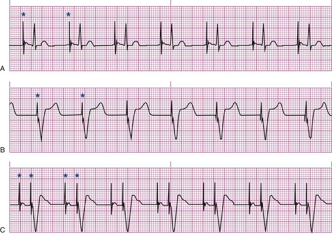 Single chamber pacemaker ecg