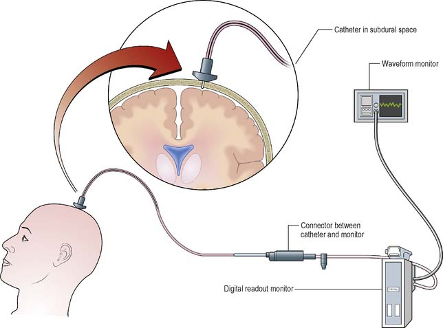 Brain Monitoring System : Nursing patients with disorders of the nervous system
