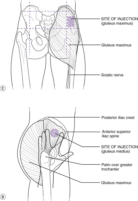 intramuscular injection sites