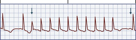 Premature Junctional Contraction P Wave Nursing Management: Dy...