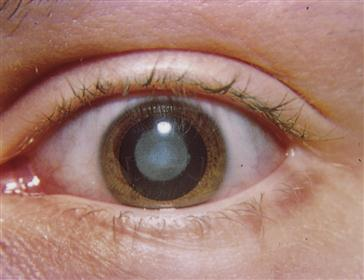 27 care of patients with disorders of the eyes and ears