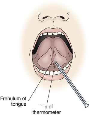 first step on taking oral temperature Taking oral temperature is,when thermometer is used in your mouth for to check the ask the patient if he has taken anything by mouth, if so wait for 10-20 minutes, otherwise the thermometer will not record actual bodythis is very important step for taking oral temperature.