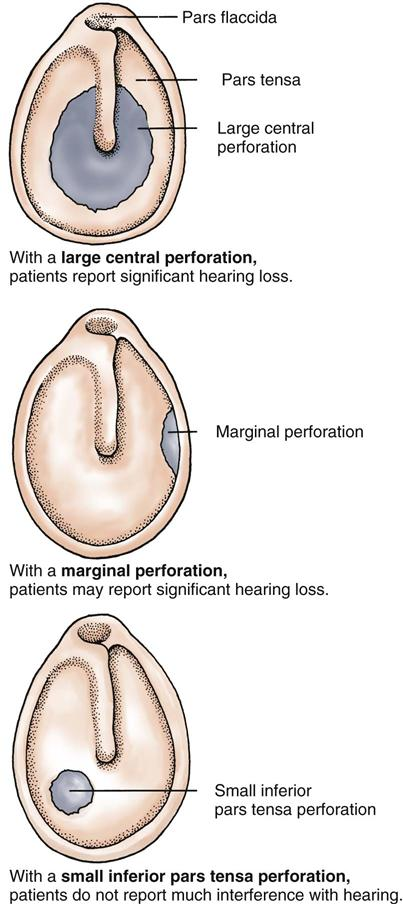 how to help with healing of a perforated eardrum