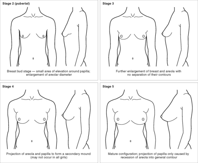 pictures-of-stages-of-girls-breasts-older-lady-young-boys-sex-movies