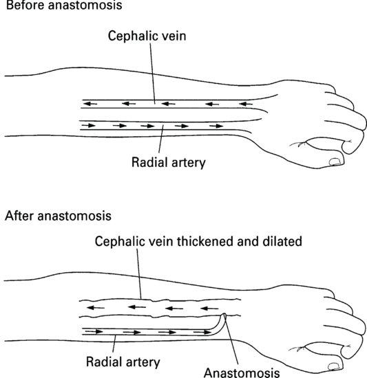 haemodialysis   nurse key, Cephalic Vein