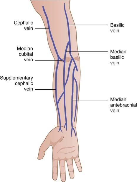 sclerosed veins for phlebotomy Phlebotomy | Nurse Key